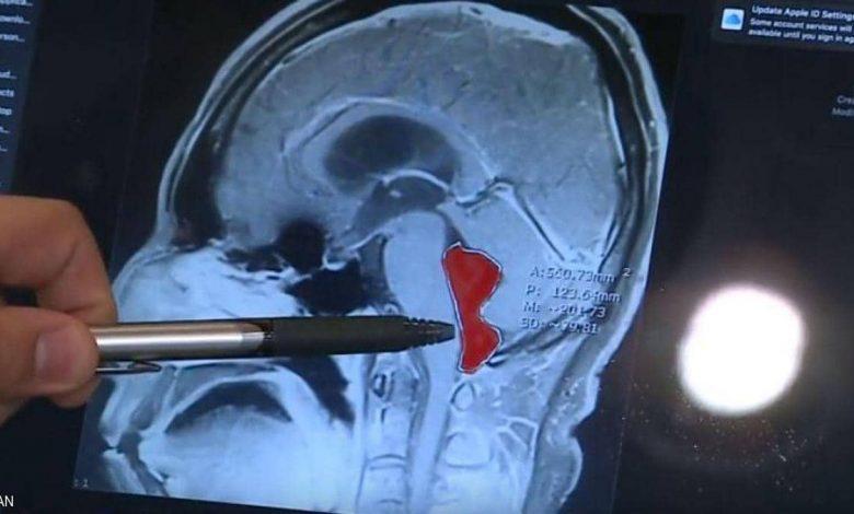 دودة في دماغ رجل لمدة 10 سنوات.. كيف دخلت وماذا فعلت بدماغه؟ 1