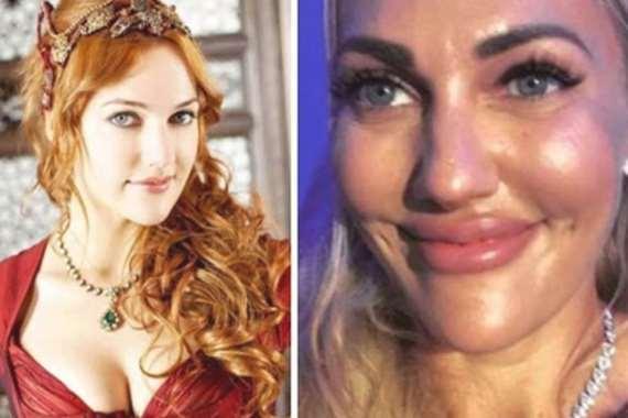 ممثلة تركية شهيرة تكشف سر تشويه وجهها بـ البوتكس! 1