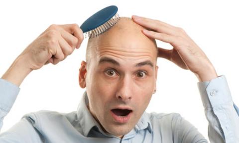 هل تعاني من الصلع ؟ دراسة حديثة تكشف علاج محتمل 1