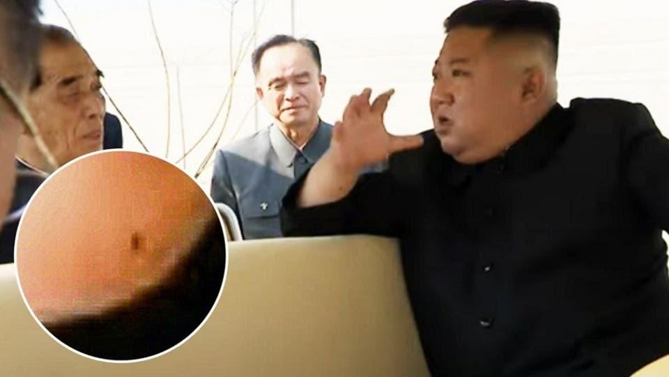 شاهد العلامة التي بقيت بعد عملية بقلب الدكتاتور الكوري كيم جونغ- أون 1