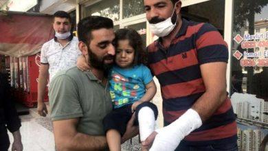 """صورة طفل سوري ينجو """"بأعجوبة"""" بعد تعرضه لحادثة سقوط في """"غازي عينتاب"""""""